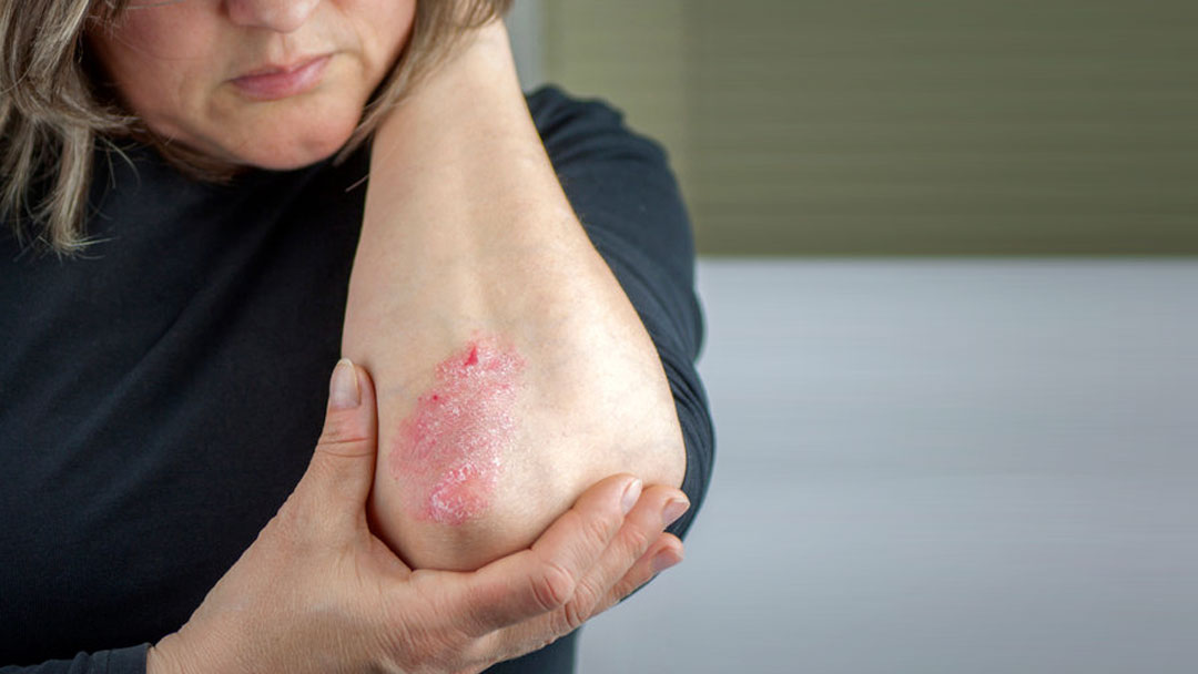 Woman with psoriasis on elbow